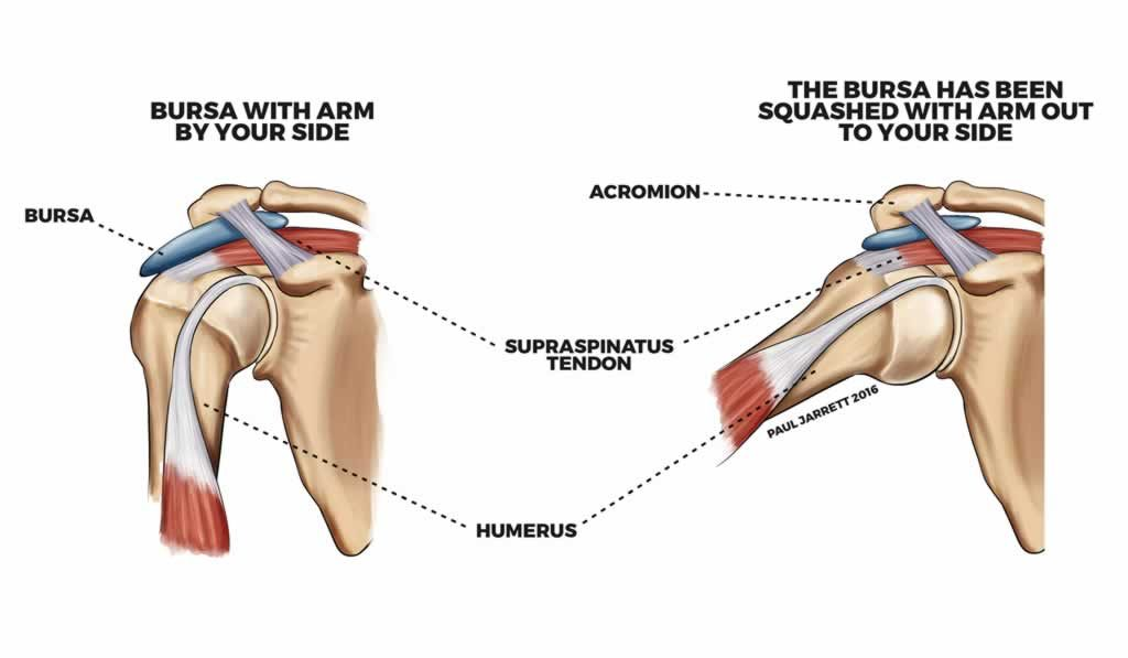 shoulder bursitis